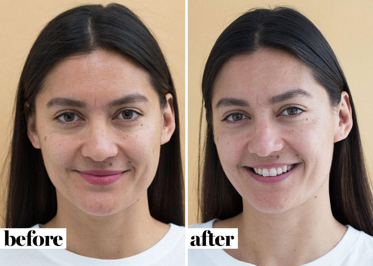 Annie, before and after eight weeks using [Rodan + Fields' four-step Soothe regimen](https://www.rodanandfields.com/Shop/Product/SORG001)